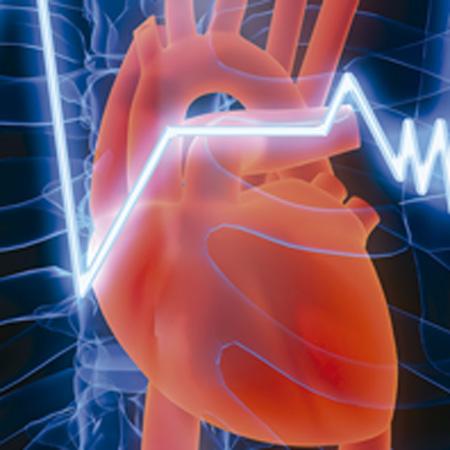 Cardiovascular Apparatus